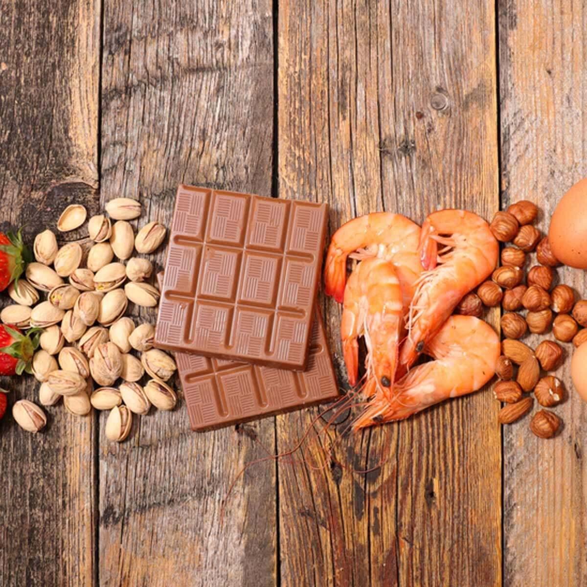 common food allergies_637702432