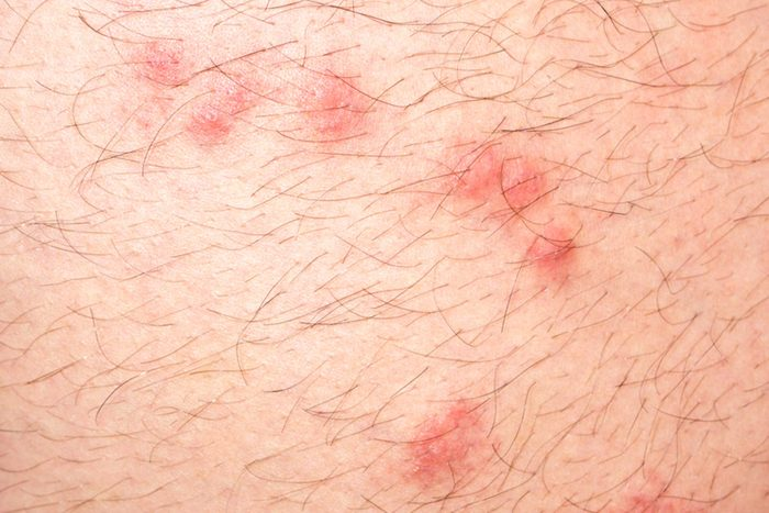 close up of flea bites on human skin